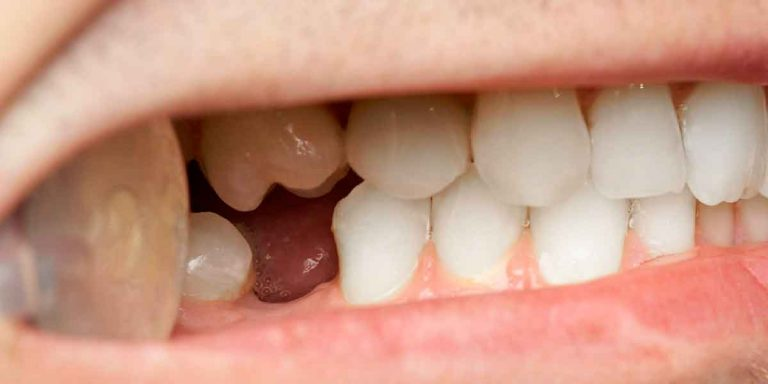 Don't Let One Missing Tooth Damage the Rest of Your Mouth